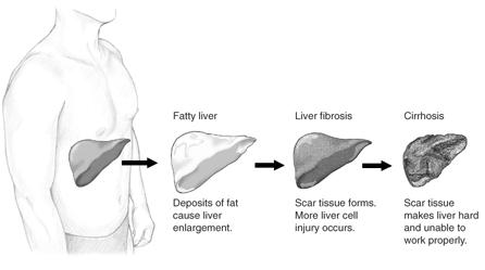fatty.liver_.stages 20 Reasons I Quit SugarDiet Nutrition